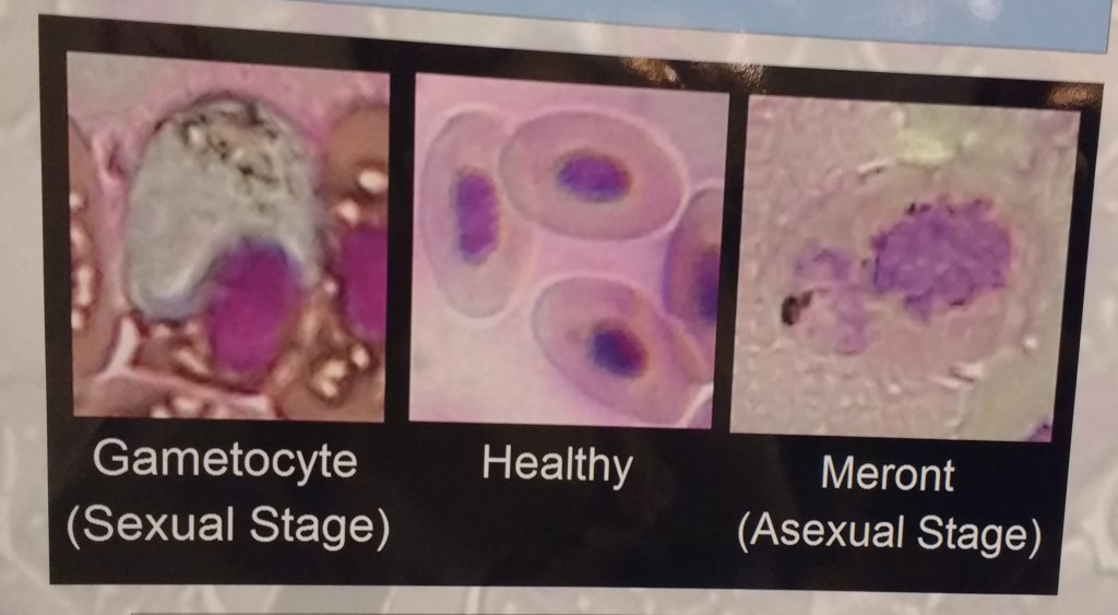 Cells infected with P. floridense (left and right) vs. healthy cells (middle)