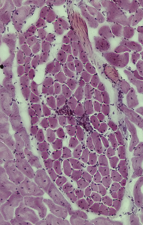 Anolis RPM muscle cross-section. The darkened area in the middle of the muscle shows white blood cell infiltration, which indicates damaged tissue.
